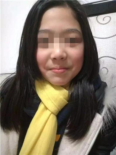 11岁女孩喝了妈妈煮的一碗水 山豆根 食物中毒 中毒性脑病